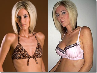 Breast Implants Cost