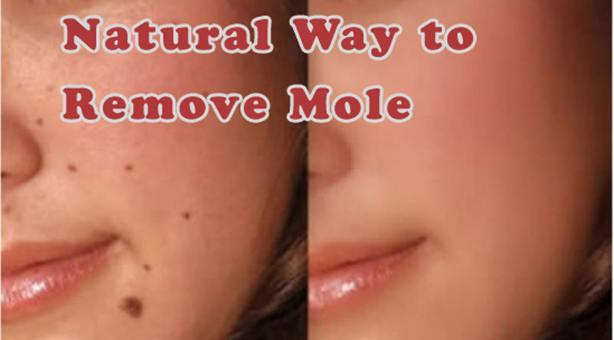 Remove a Mole