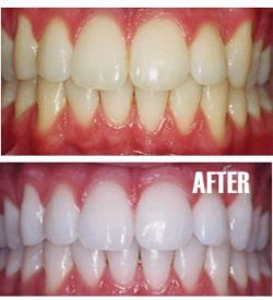 Teeth Whitening Cost